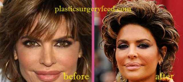 Lisa Rinna Botox