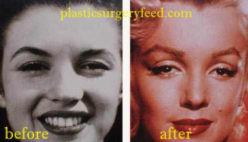 Marilyn Monroe Nose Job Rhinoplasty
