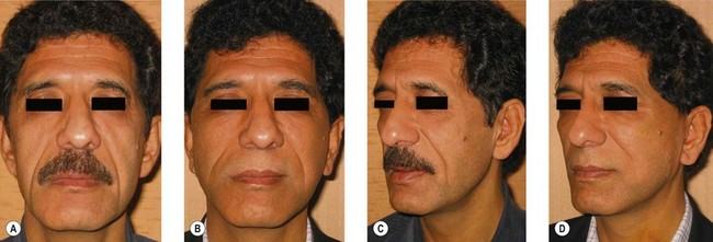 Facelift   Plastic Surgery Key