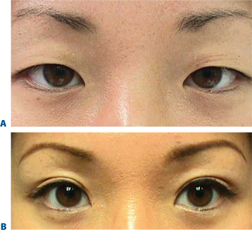 Upper Blepharoplasty in the Asian Patient   Plastic Surgery Key