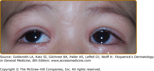 Most Common Cause Of Death In Kawasaki Disease