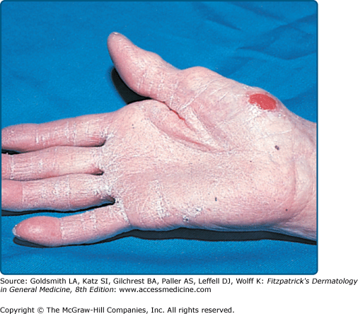 Occupational Noneczematous Skin Diseases Due To Biologic