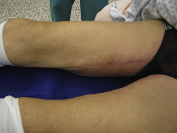 Short vertical scar medial thigh lift | Plastic Surgery Key