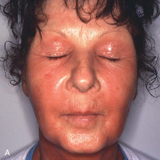 Dermatitis (Eczematoid Reactions) | Plastic Surgery Key