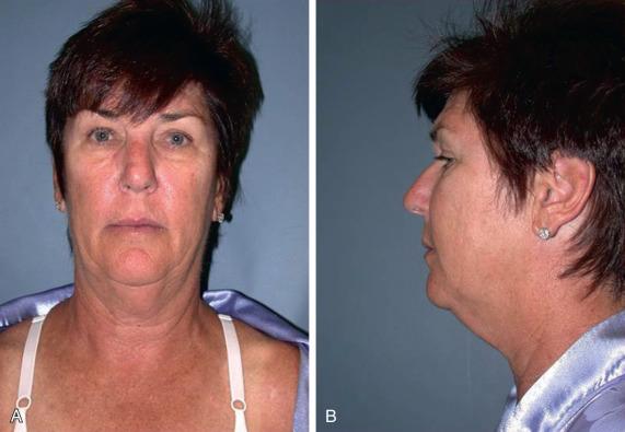 High SMAS Face Lift | Plastic Surgery Key