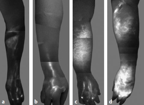 Microsurgical Treatment Of Lymphedema Plastic Surgery Key
