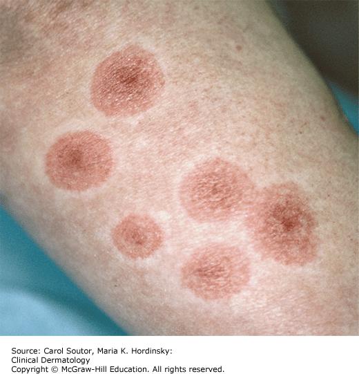 Erythema Multiforme Stevensjohnson Syndrome Toxic