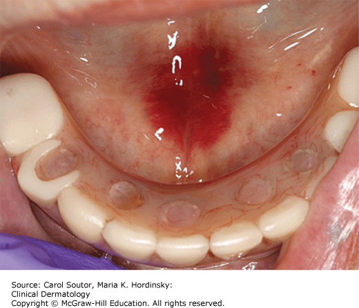 Diseases of the Oral Cavity | Plastic Surgery Key