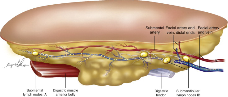 Microsurgical Procedures: Vascularized Lymph Node Transfer ...
