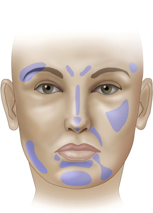 The role of Radiesse® in facial shaping | Plastic Surgery Key