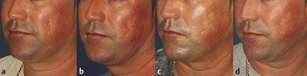 A 30-year-old man with scattered rolling, pitted, boxcar acne scars—more prominent left side. (a) The baseline photo, (b) 1 month, (c) 2 months and (d) 3 months follow-up after monthly treatment with