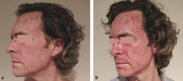 (a, b) Patient at days 1 and 2 post-microneedling with topical platelet-rich plasma.
