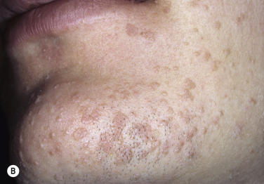Warts Herpes Simplex And Other Viral Infections Plastic Surgery Key