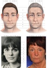Chapter 1 The Role of Fat Grafting in Facial Rejuvenation