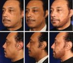 Chapter 7 Centrofacial Rejuvenation: Putting It All Together