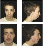 4 Craniofacial Microsomia