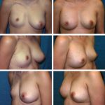 Chapter 40 LIPOMODELING FOR CONGENITAL BREAST DEFORMITIES: TUBEROUS BREASTS, POLAND SYNDROME, AND ASYMMETRY