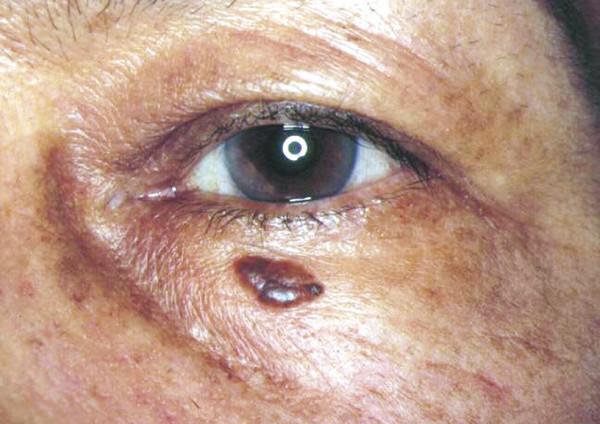 Periocular papillomas. Periocular papillomas Papiloma humano tratamiento en mujeres embarazadas