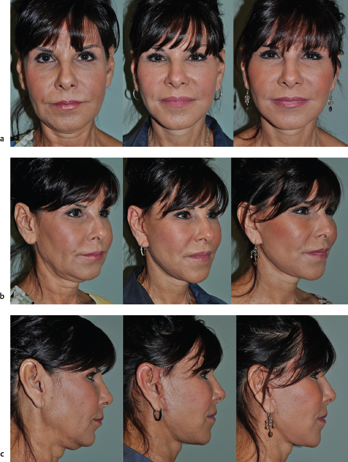 29 Short-Incision Facelift and Necklift   Plastic Surgery Key