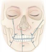 Pediatric Mandible Fractures