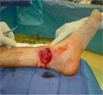 Open Wound: Lower Third of Leg