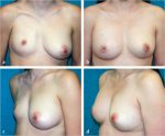9 Fat Grafting to the Breast: Aesthetic and Reconstructive Applications