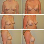 15 Subpectoral Breast Augmentation (Inframammary Approach)