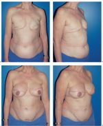 6.6 Bilateral Breast Reconstruction