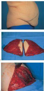 8 Prophylactic Subcutaneous Mastectomy