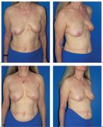10 Breast-Conserving Therapy