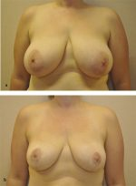12 Reduction Mammaplasty