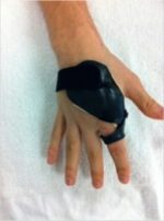 39 Limited-Open Retrograde Intramedullary Headless Screw Fixation of Metacarpal Fractures