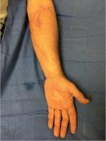 70 Split Thickness Skin Graft