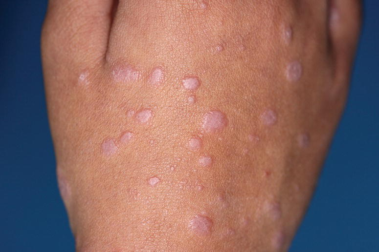 Photo displaying classical erythematous to violaceous, flat‐topped, polygonal papules of CLP in a hand.