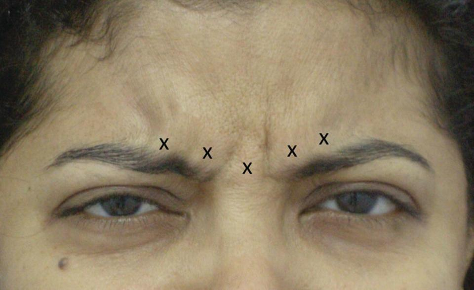Photo displaying the upper-half face of a woman with injection points for glabellar frown lines, indicated by X markers.