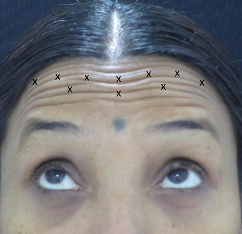 "A close-up view of a woman elevating her eyebrows with forehead lines having ""X"" marks depicting the injection points."