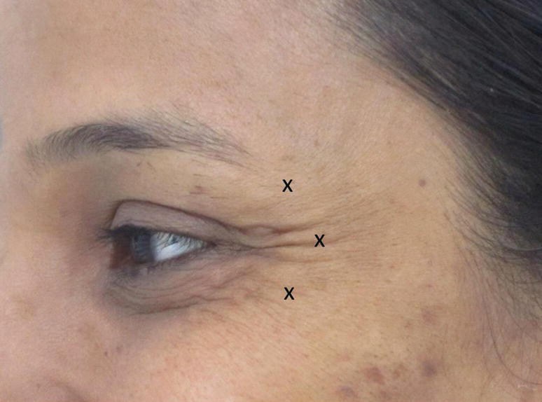 "A close-up view of a woman's outer eye with crow's feet having ""X"" marks indicating injection points."
