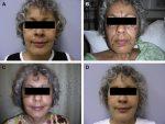 Fat Grafting for Facial Rejuvenation