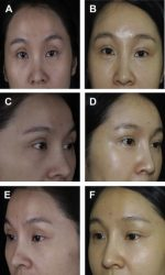 Fat Grafting for Facial Rejuvenation in Asians