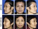 Fat Grafting for Facial Contouring (Temporal Region and Midface)