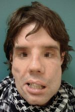 Management of Facial Burns, Acute Versus Long-Term, Surgical Versus Non-surgical Face Transplant