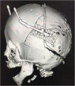 14 Craniosynostosis