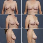 Mastopexy—Inverted T Approach