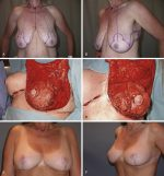 Breast Reshaping After Massive Weight Loss