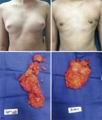 Transgender Breast Surgery (Male-to-Female and Female-to-Male)