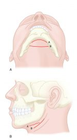 Surgical anatomy and approaches to the facial skeleton