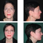 Alloplastic augmentation of the midface