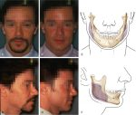 Alloplastic augmentation of the chin and the mandible