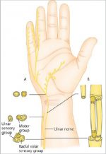 17 Nerve Palsies and Tendon/Nerve Transfers for Injuries at or Distal to the Elbow