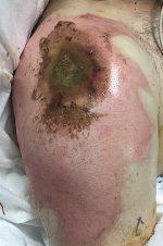 Case 50 Electrical Injuries